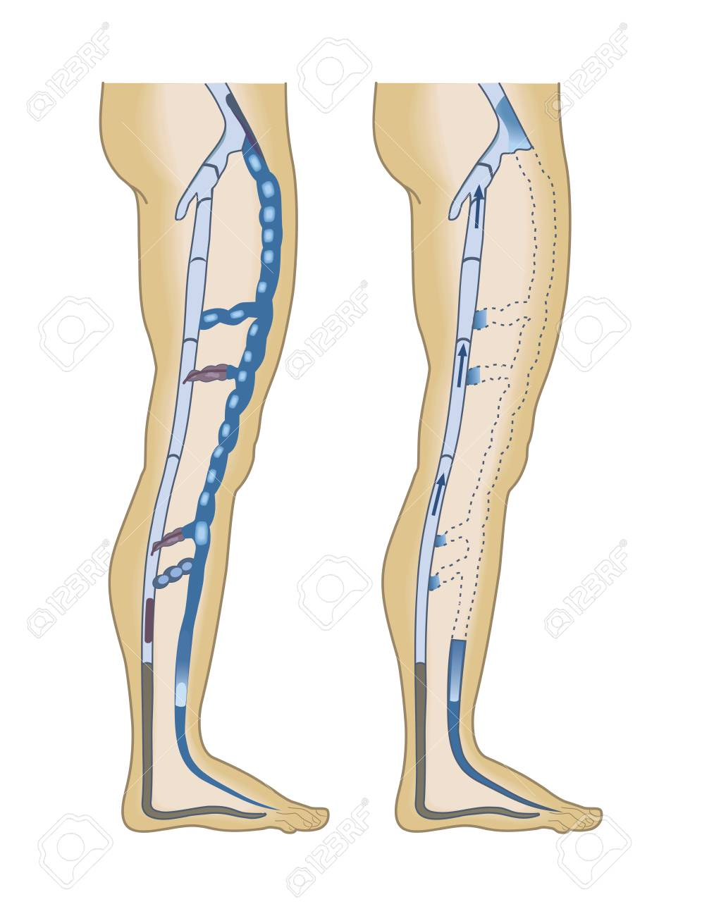 A Poster Of Varicose Veins Medical Infographics Vector Royalty
