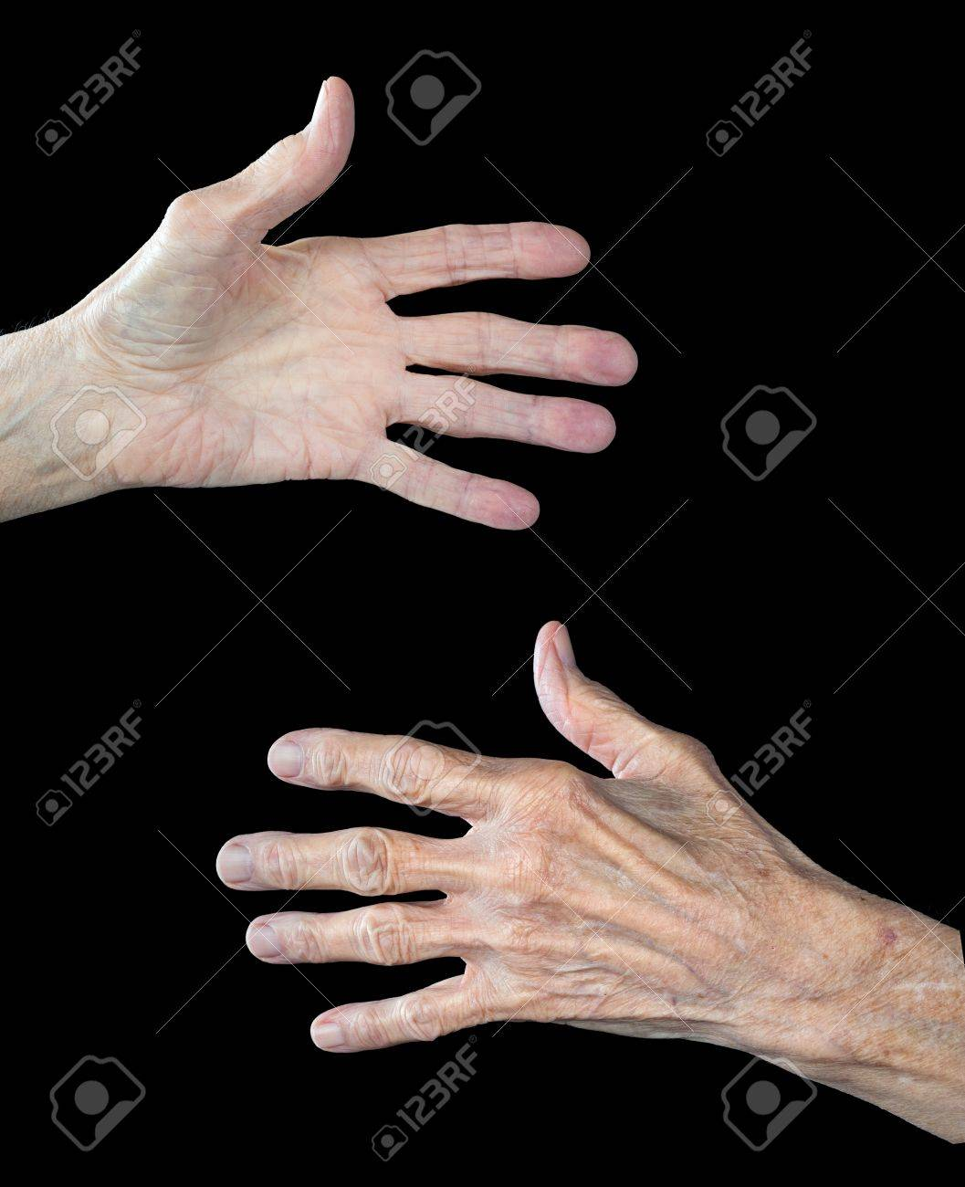 The front and back of an elderly woman's hands.  The subject has arthritus and shows clear signs of aging. Stock Photo - 15564495