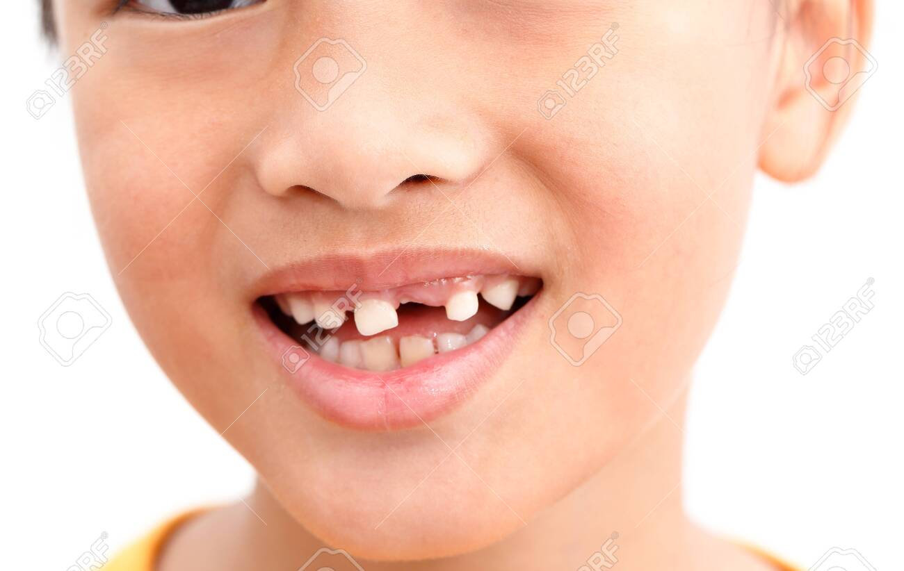 Little girl Show Broken tooth with smile. Isolated on white background - 122196280
