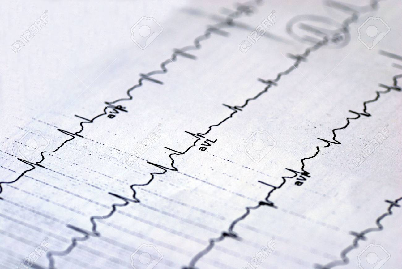 A macro picture of the EKG chart Stock Photo - 6752106