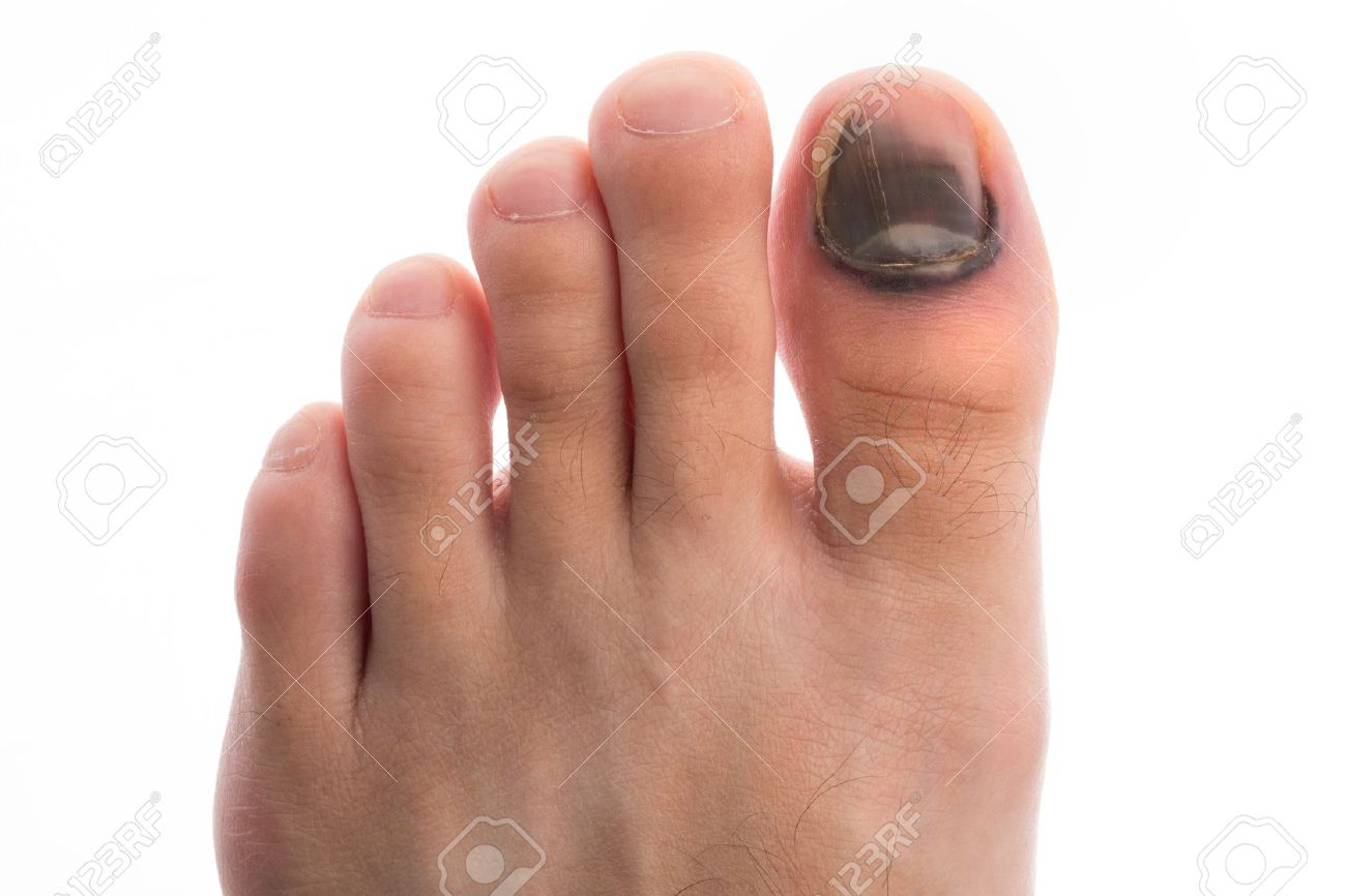 Bleeding Under The Toe Nail Stock Photo, Picture And Royalty Free ...