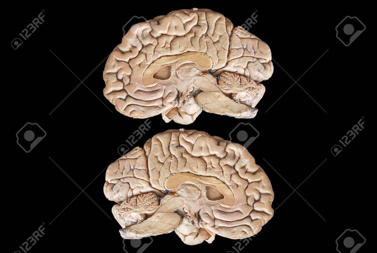 Echte Menschliche Anatomie Hälfte Gehirn Auf Schwarzem Hintergrund ...