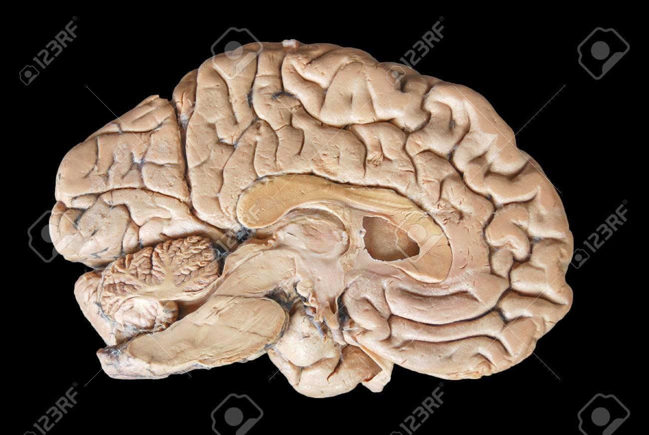 Real Human Half Brain Anatomy Isolated On Black Background Stock