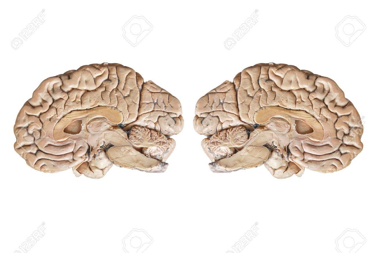 Echte Menschliche Anatomie Hälfte Gehirn Isoliert Auf Weißem ...