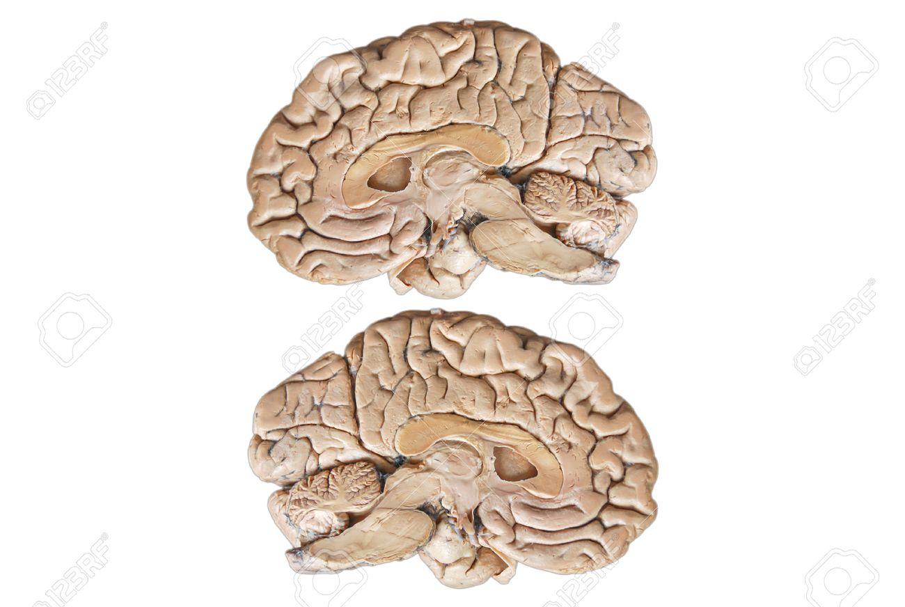 Echt Zwei Anatomie Menschliche Hälfte Gehirn Isoliert Auf Weißem ...