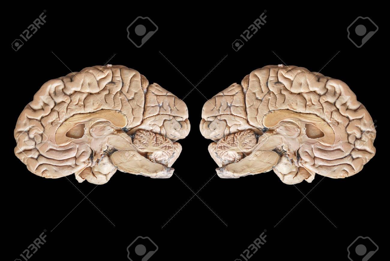 Echt Zwei Anatomie Menschliche Hälfte Gehirn Auf Schwarzem ...