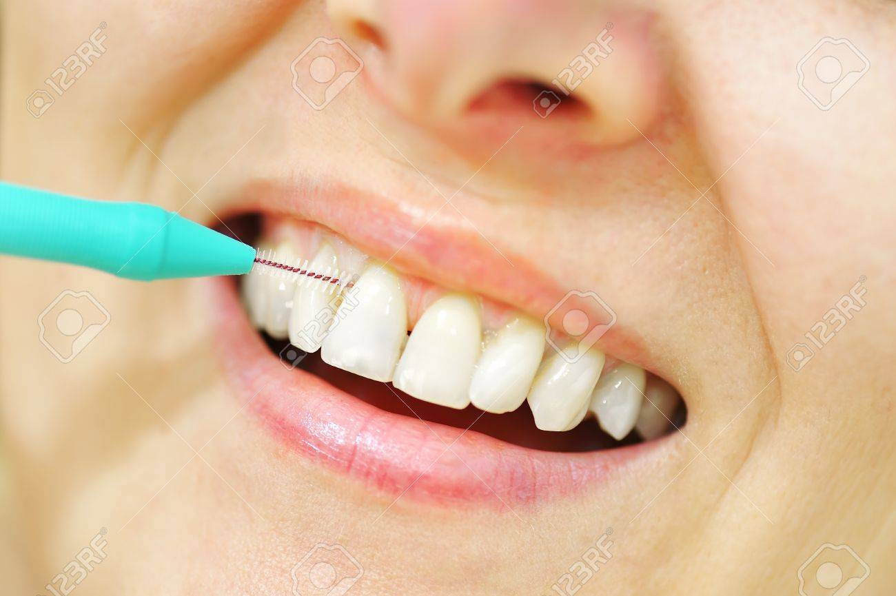 Girl with Interdental Brushes Stock Photo - 20771226