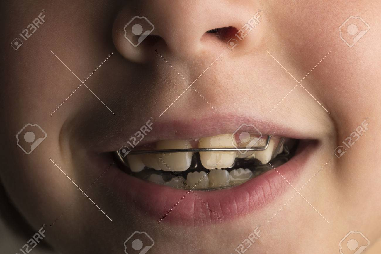 Closeup of smiling little girl wearing an orthodontic dental apparatus for correcting the position of teeth - 64643848