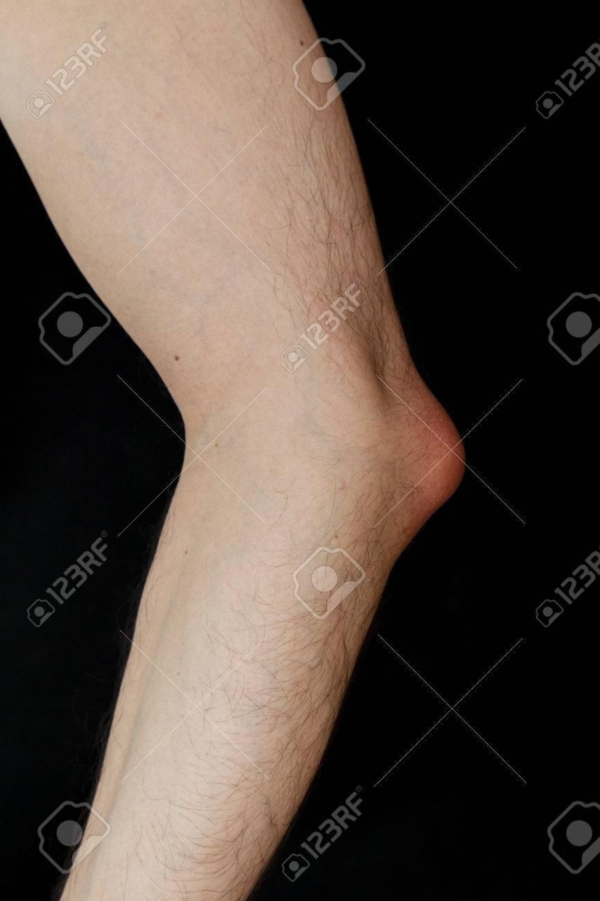 Olecranon Bursitis Also Known As Students Elbow Is A Medical