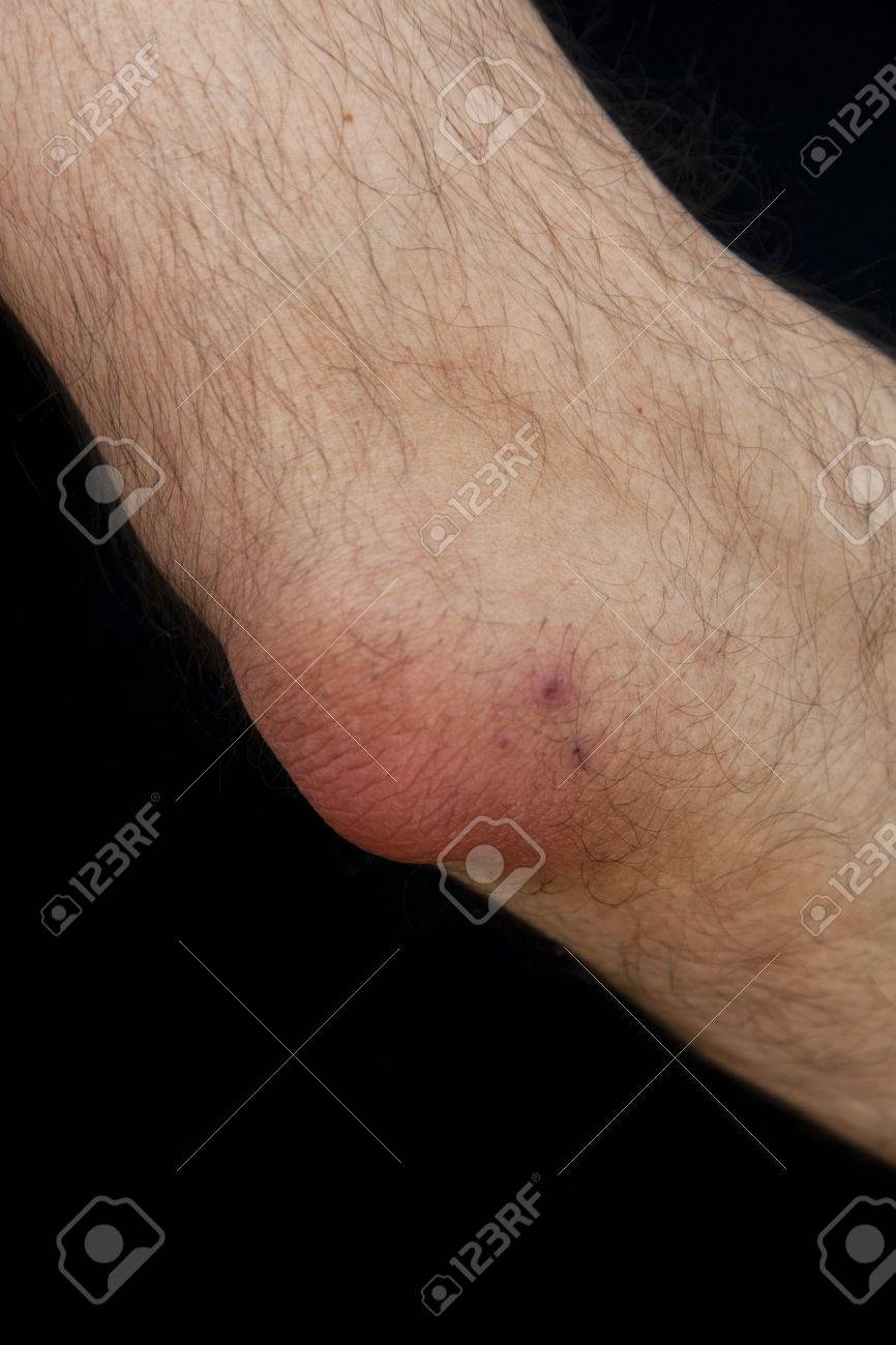 Olecranon Bursitis, Also Known As Student\'s Elbow, Is A Medical ...