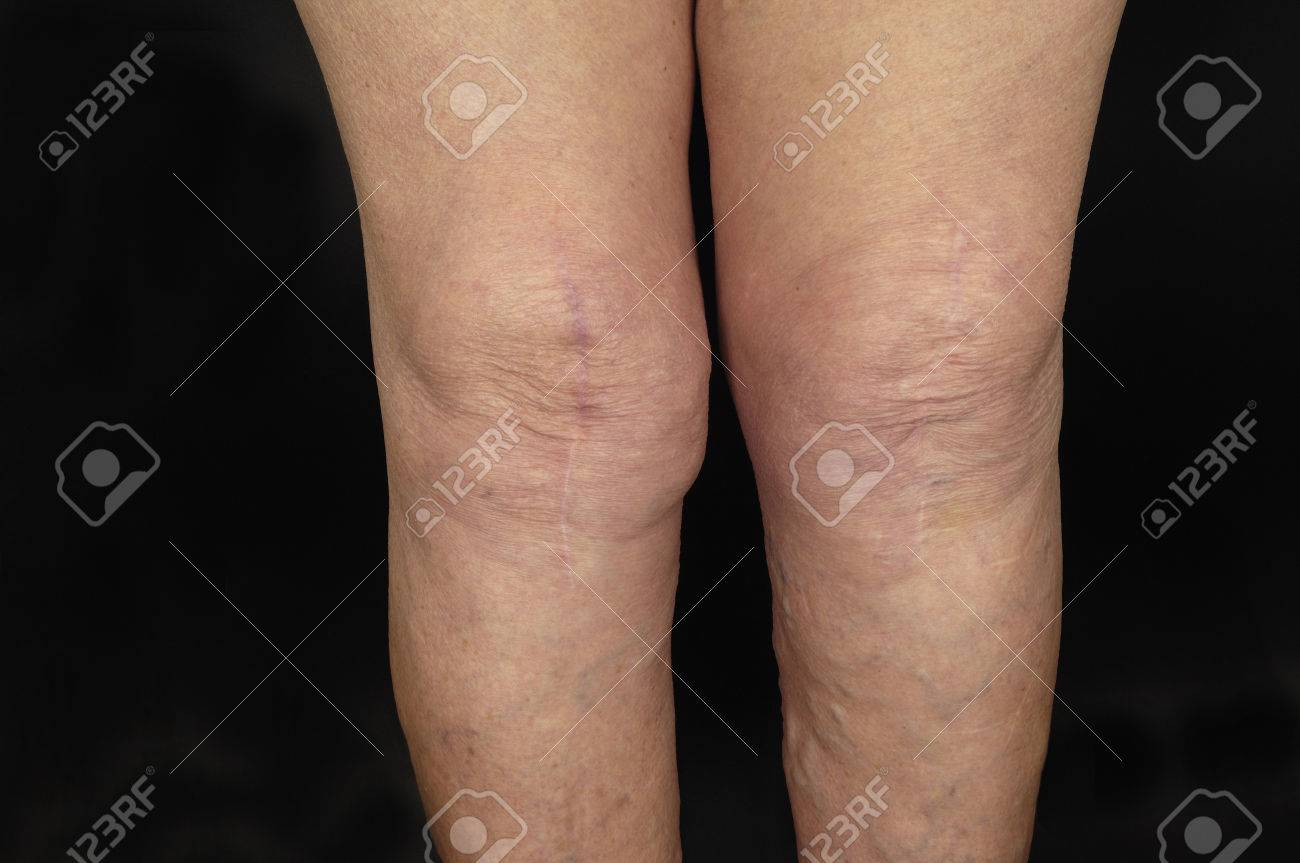 Cicatrización Después De La Cirugía De Prótesis De Rodilla Fotos Retratos Imágenes Y Fotografía De Archivo Libres De Derecho Image 62441792