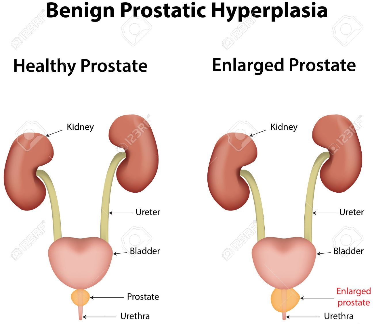 video de adenoma de próstata libre
