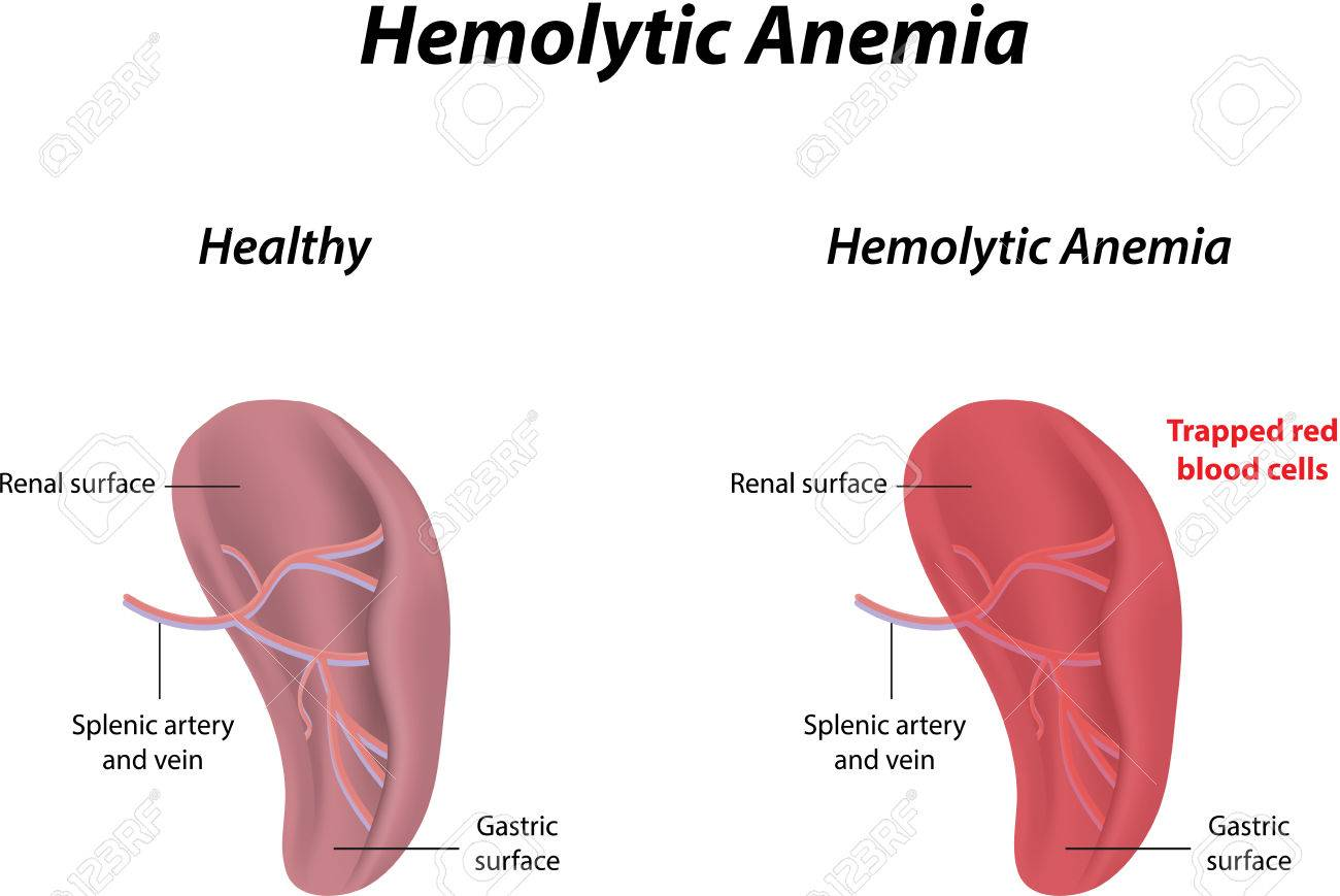 Hemolytic Anemia Royalty Free Cliparts, Vectors, And Stock ...