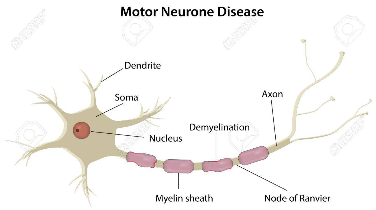 運動ニューロン疾患 ロイヤリテ...