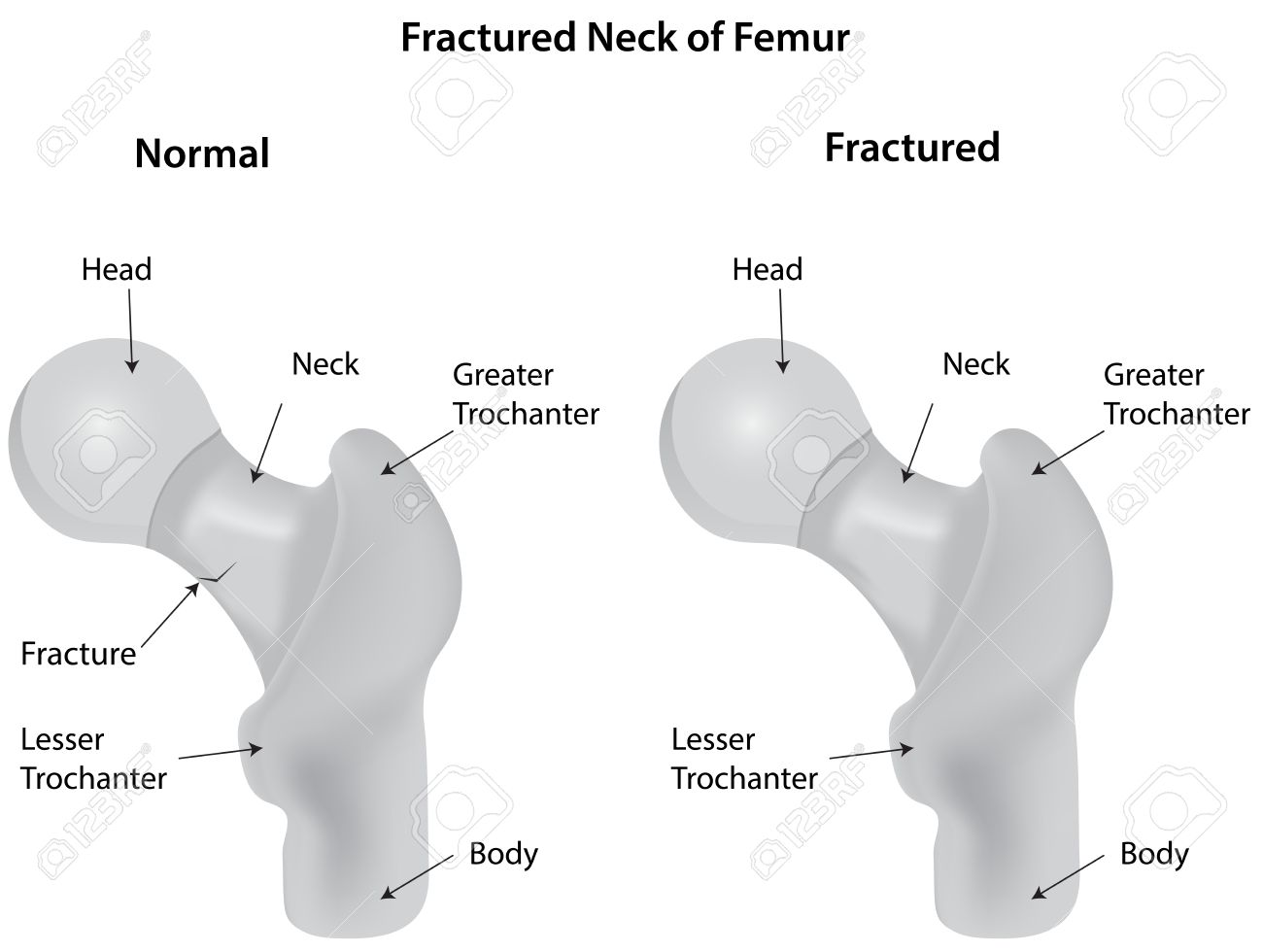 Fractured neck of femur diagram royalty free cliparts vectors and fractured neck of femur diagram stock vector 32265047 ccuart Image collections
