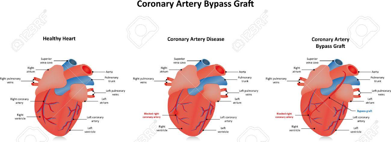 Coronary Artery Bypass Graft CABG After Coronary Artery Disease ...