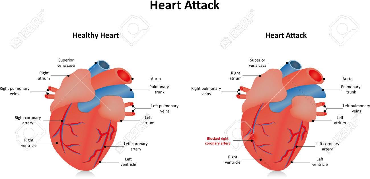 heart attack myocardial infarction royalty free cliparts, vectors, Muscles