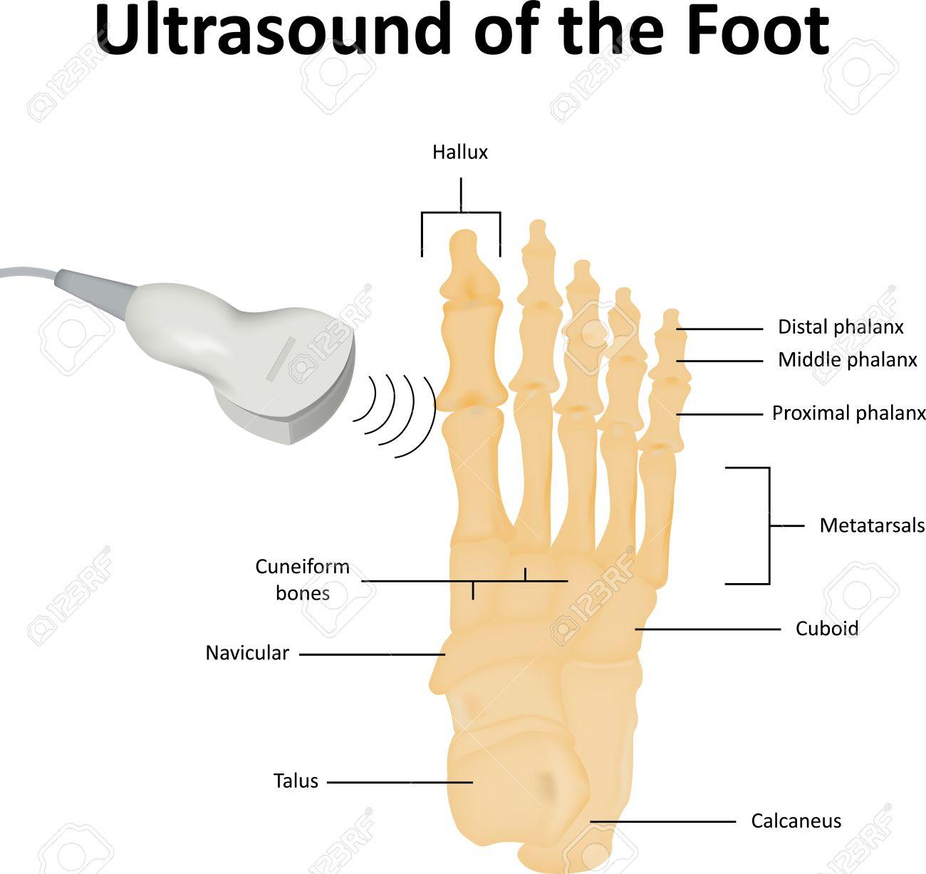 Ultraschall-Untersuchung Der Fuß Lizenzfrei Nutzbare Vektorgrafiken ...