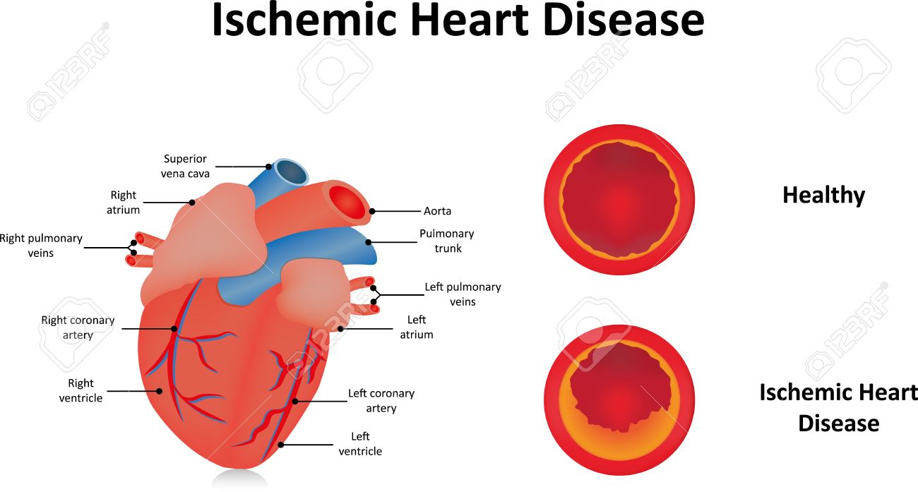 Ischemic heart disease royalty free cliparts vectors and stock ischemic heart disease stock vector 43900413 ccuart Choice Image