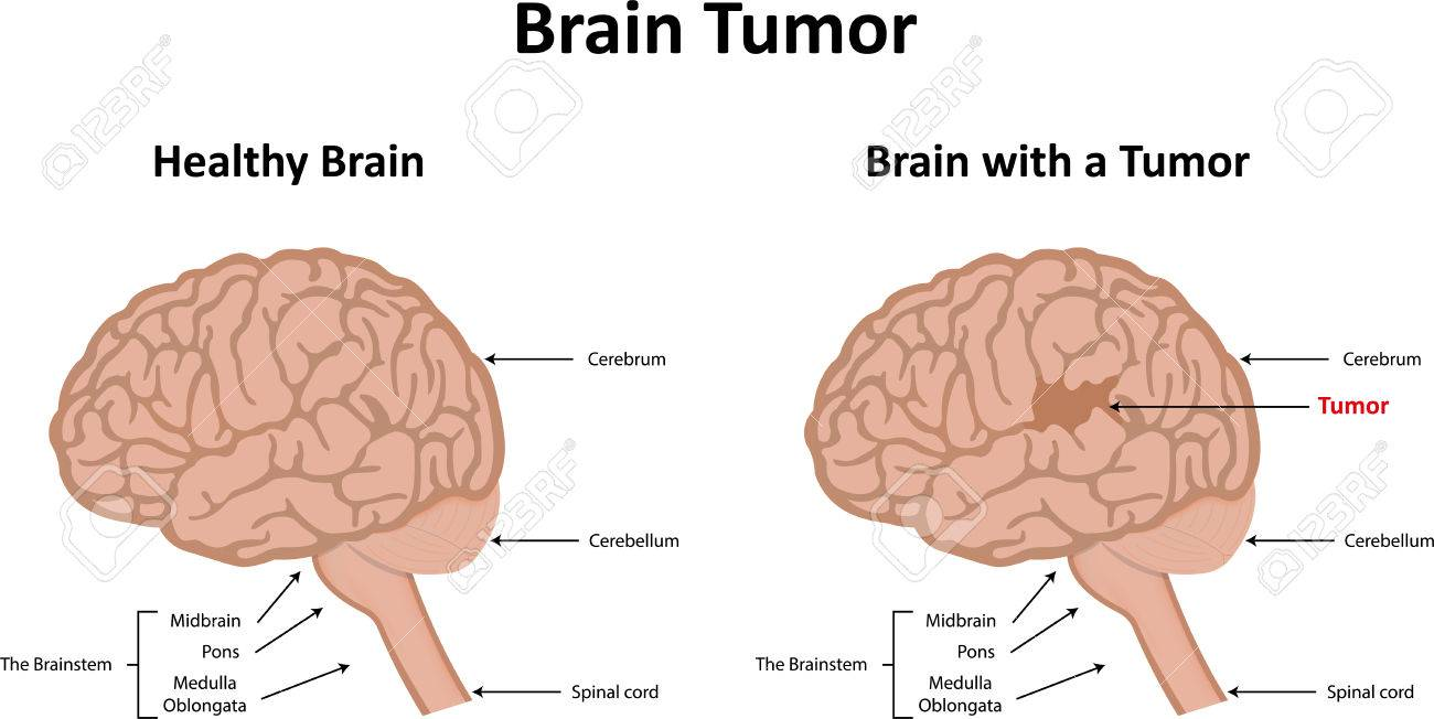 Brain Tumor Diagram 103lawi24