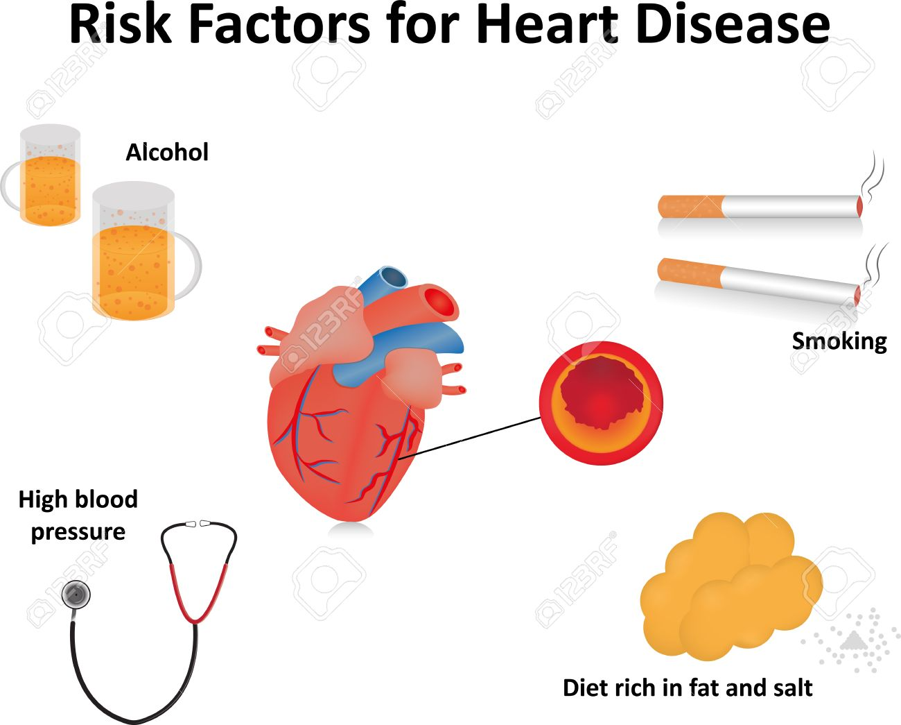 Heart disease risk factors with labels royalty free cliparts heart disease risk factors with labels stock vector 43925379 ccuart Choice Image