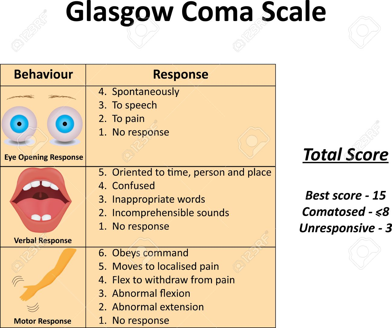 Glasgow Coma Scale Royalty Free Cliparts, Vectors, And Stock ...
