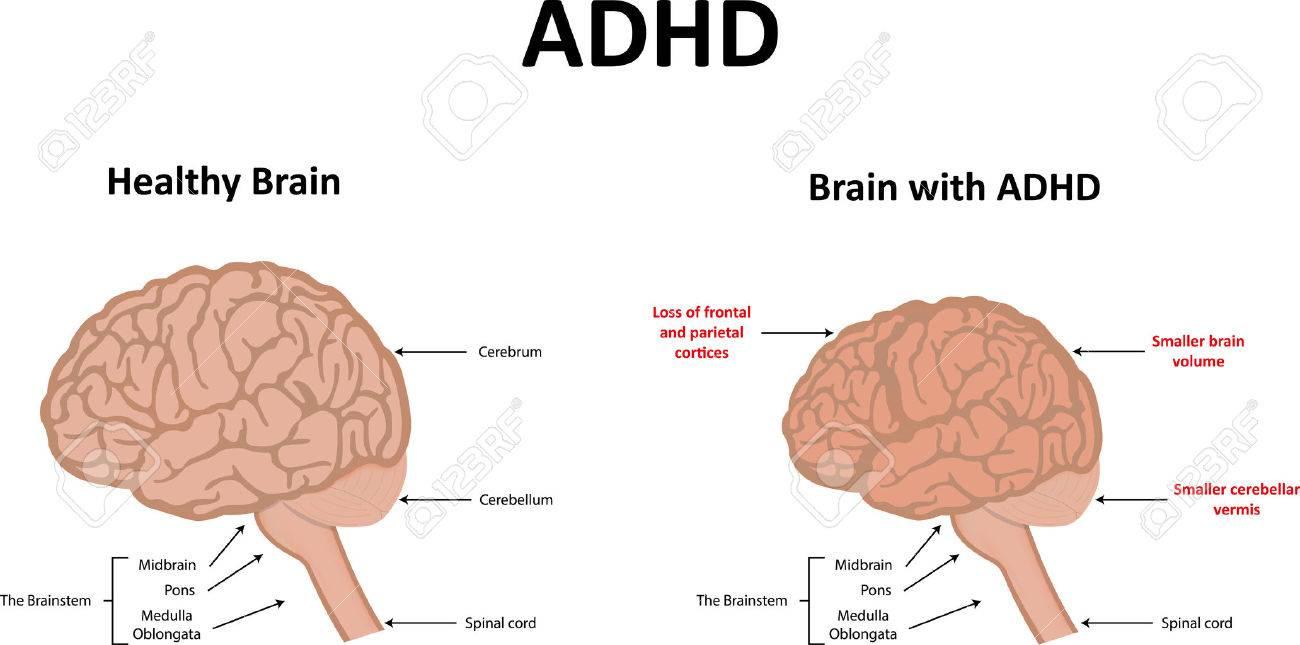 Adhd Brain Diagram - Block And Schematic Diagrams •