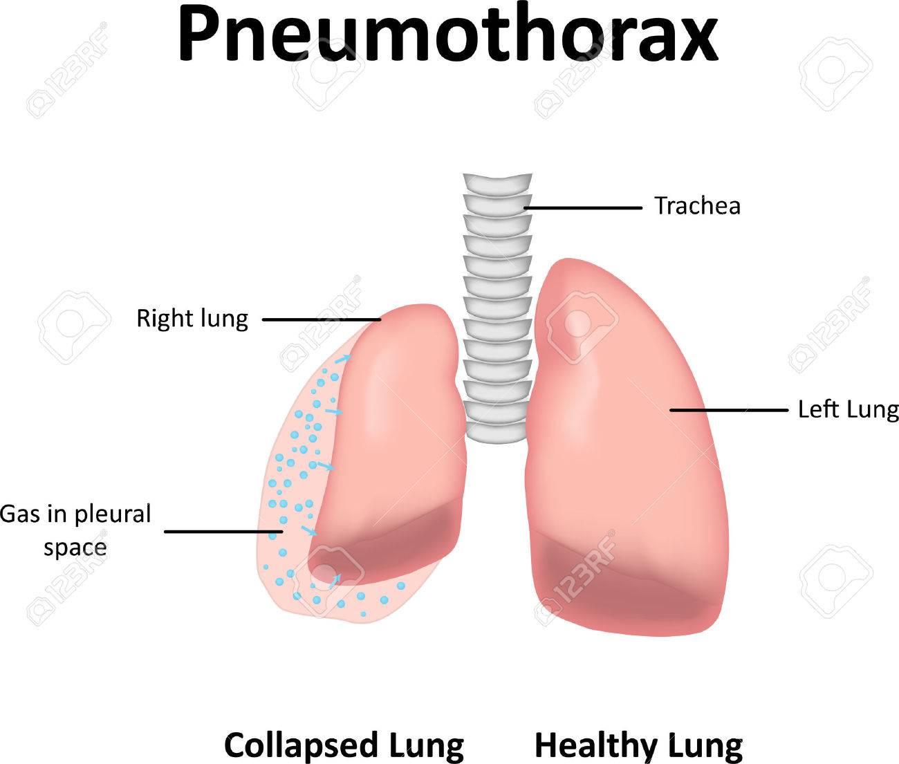 Pneumothorax - 47039321
