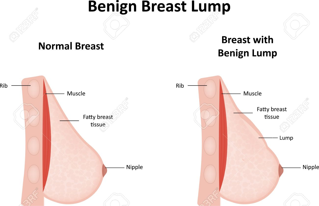benign breast lump royalty free cliparts vectors and stock
