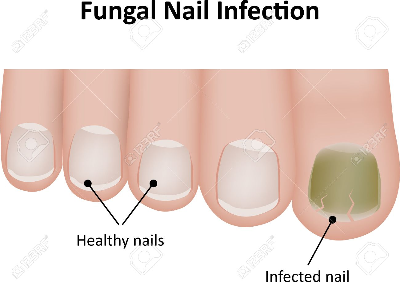 Fungal Nail Labeled Illustration Stock Photo, Picture And Royalty ...