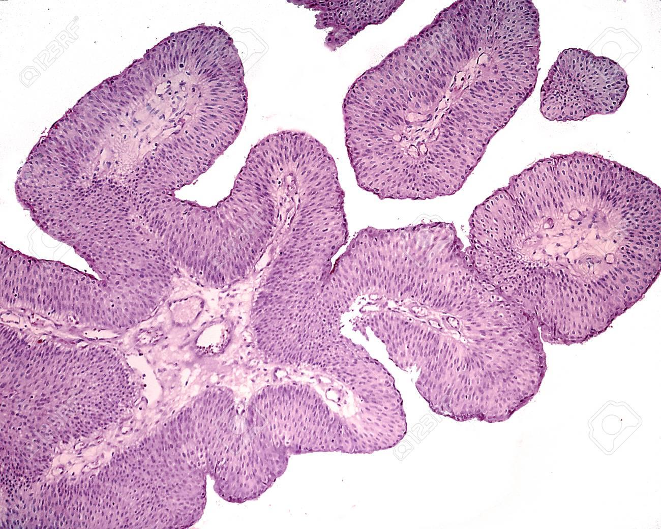 bladder papilloma histology)