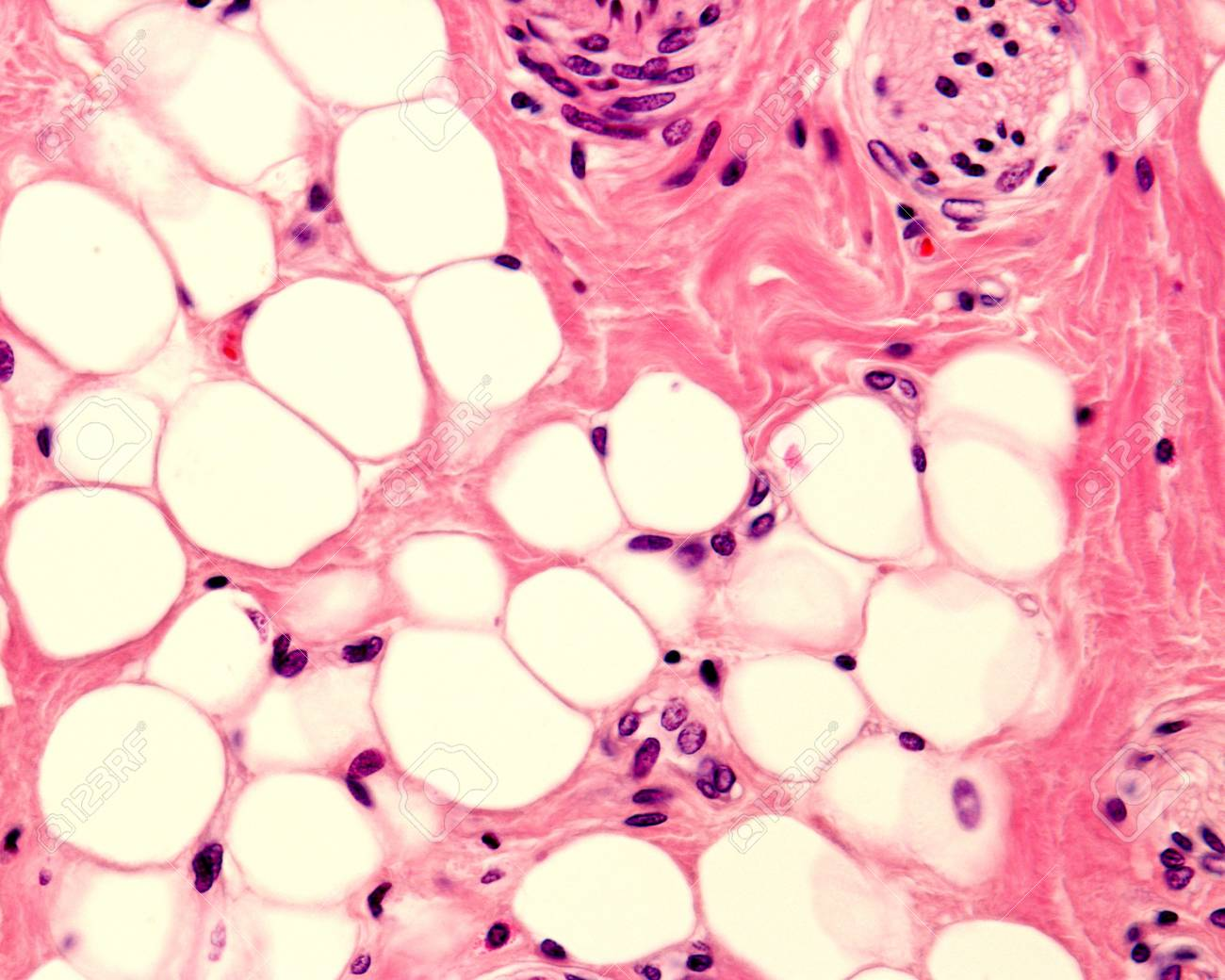 Small adipocyte lobule located in a connective tissue. A small nerve is located in the upper right corner. Light micrograph. H&E stain. - 97131173