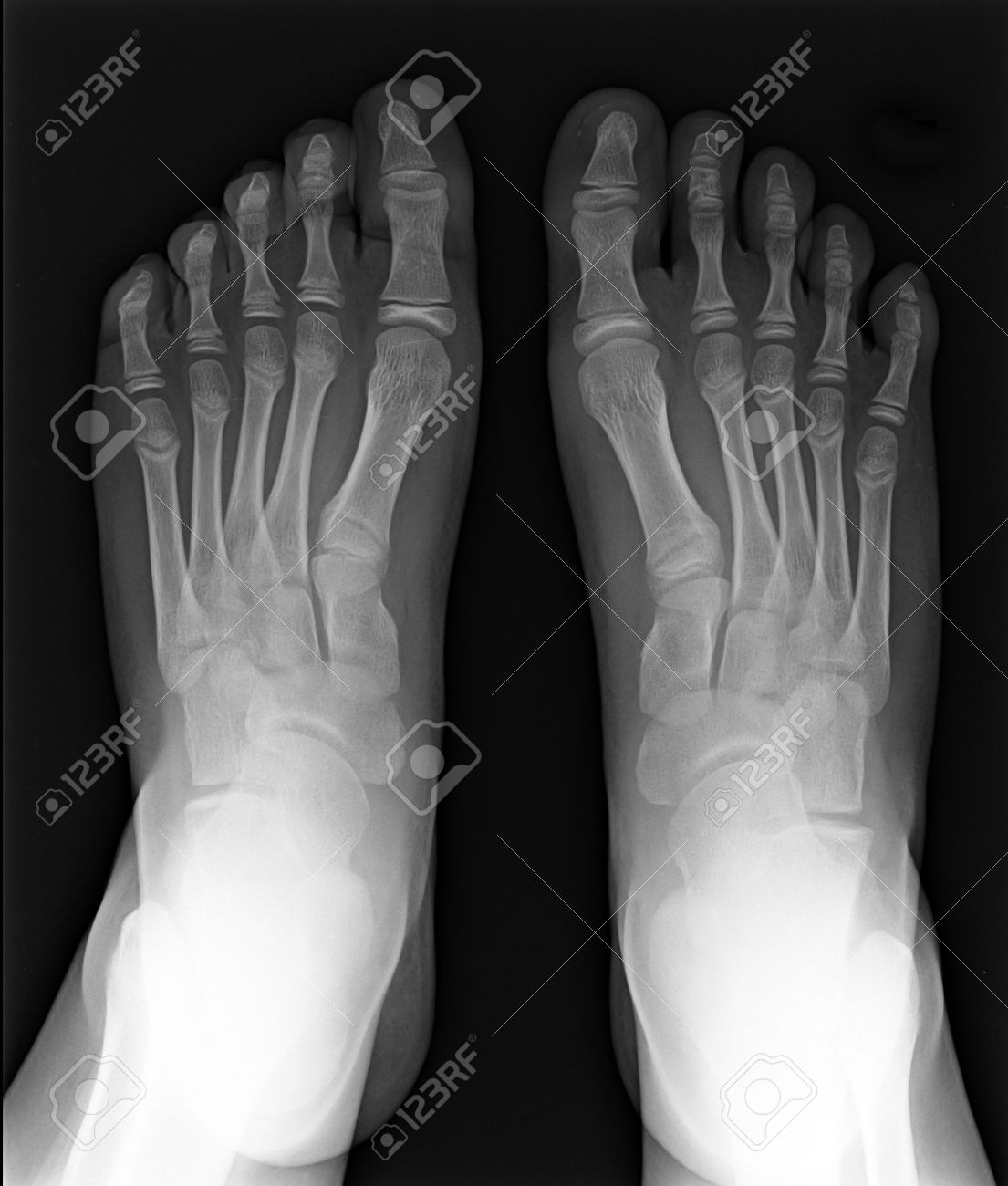 MRI Of Foot Fingers Exposed On X-ray Black And White Film Stock ...