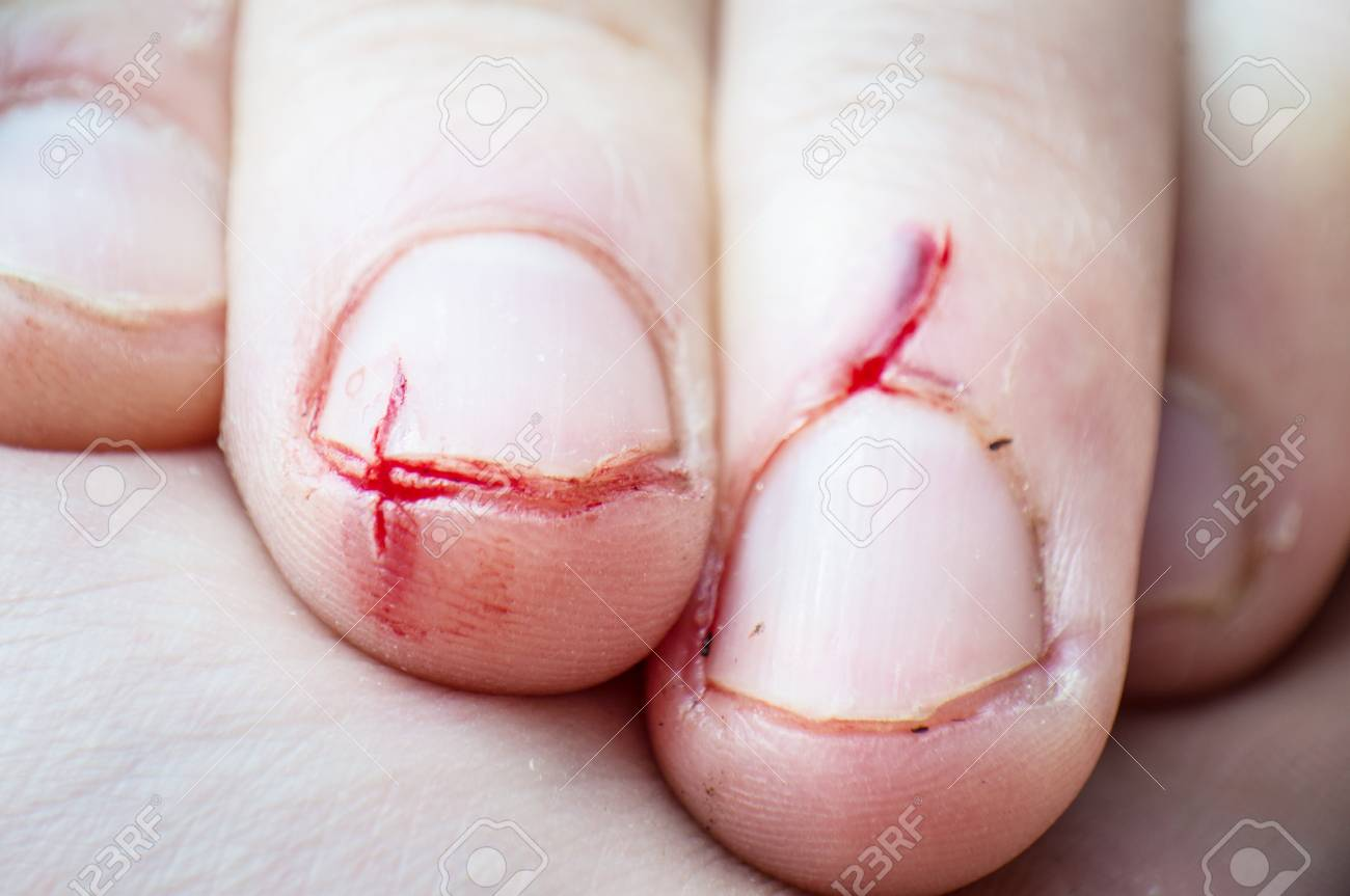 Wound On The Fingers, Strong Cut, Broken Nails, Fingers Stock Photo ...