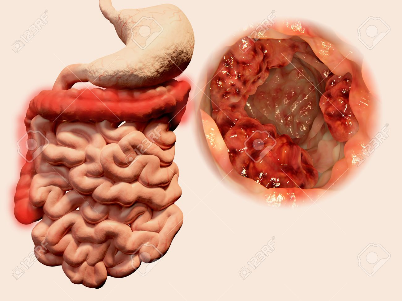 Occurrence Of Malign Tumors In The Intestines Stock Photo Picture