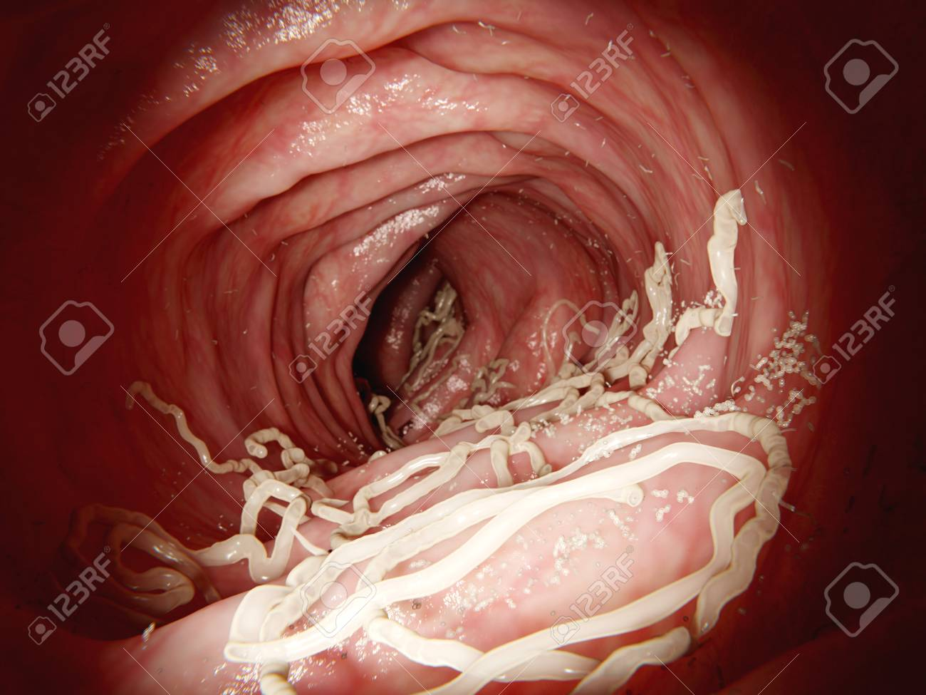 Large Roundworm In Human Intestine The Large Roundworm A Stock