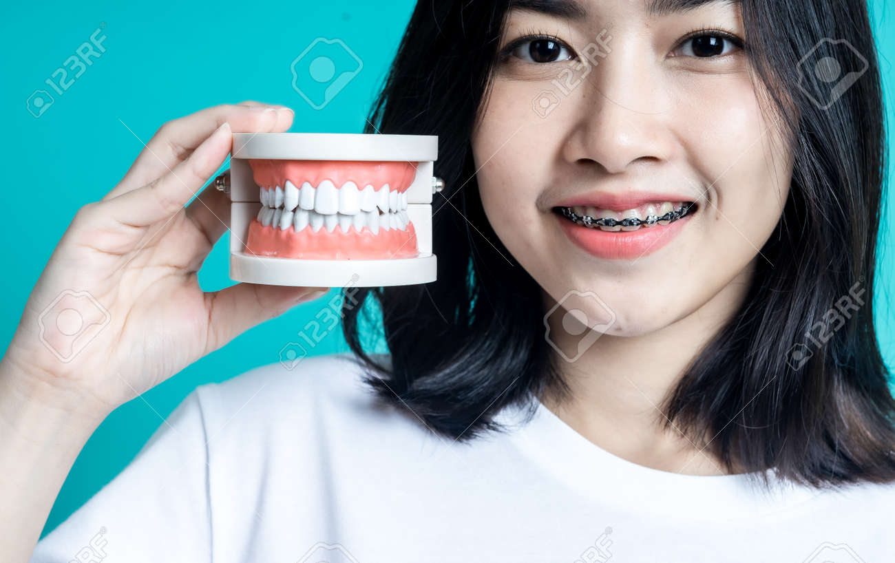 Asian woman wearing dental braces pointing to tooth sample and smiling with her healthy white teeth isolated shot on blue background - 158570269