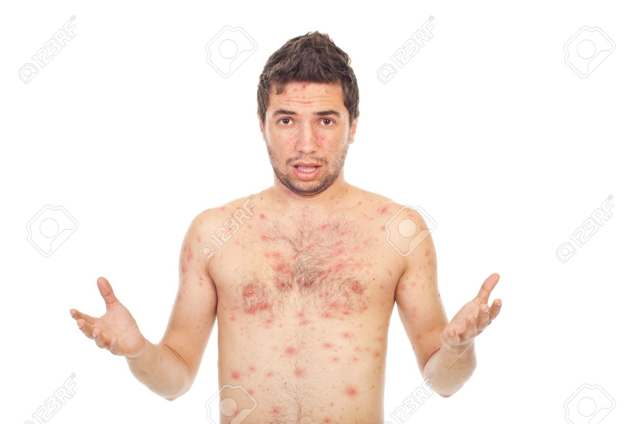 Nervous young man with chickenpox raising hands isolated on white background Stock Photo - 8375460