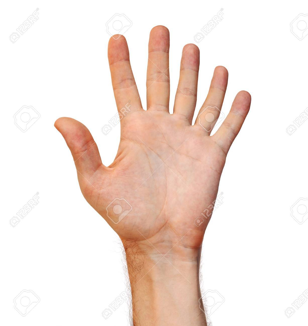 Genetic Mutation Concept Of A Six Finger Human Hand Due To An ...