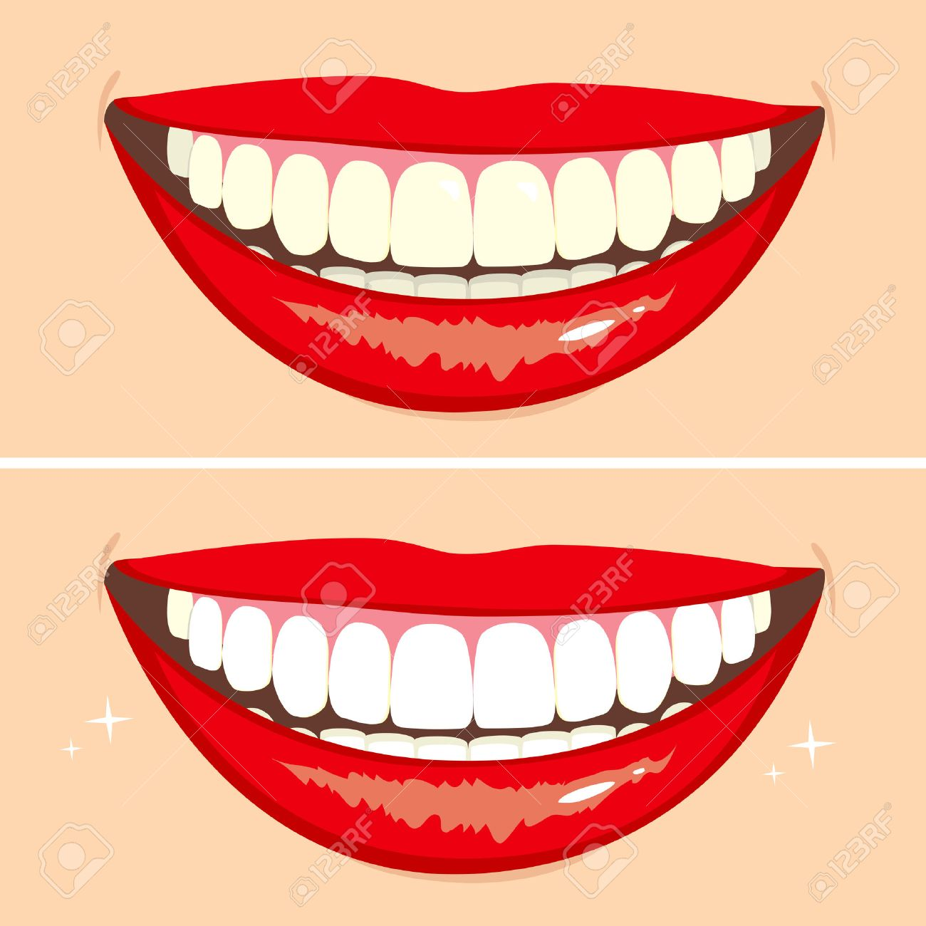 Illustration of two happy smiles showing before and after whitening teeth process - 25953509