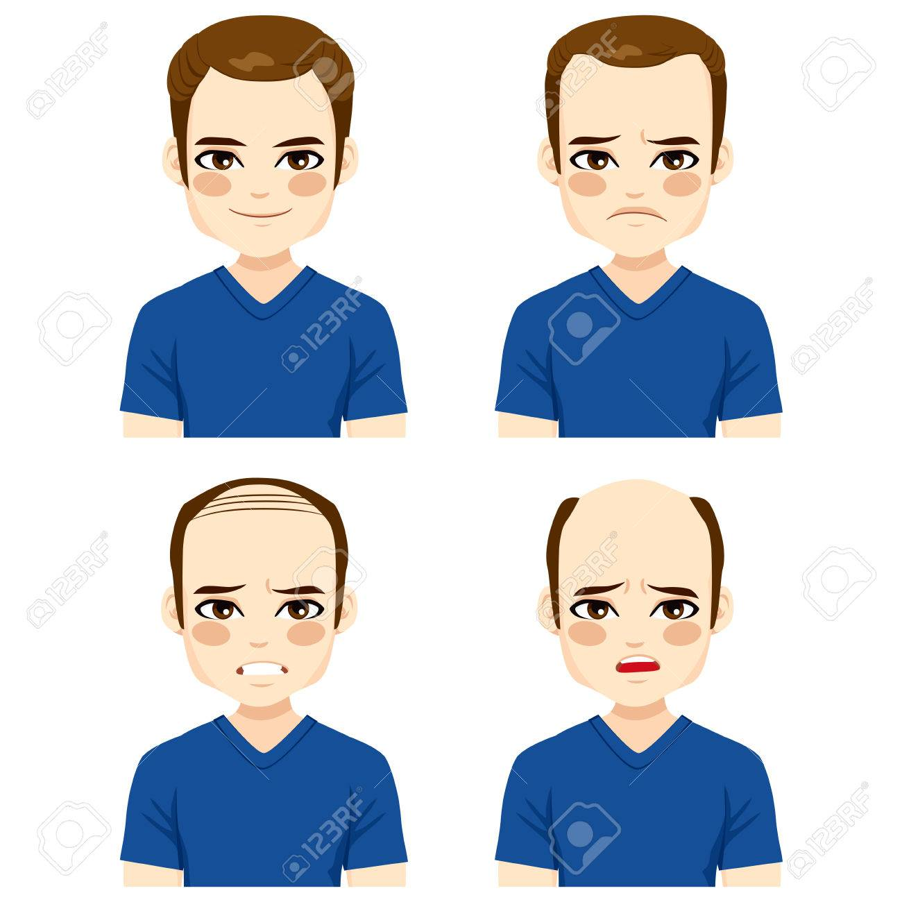 Young male with different stages of hair loss - 56673427