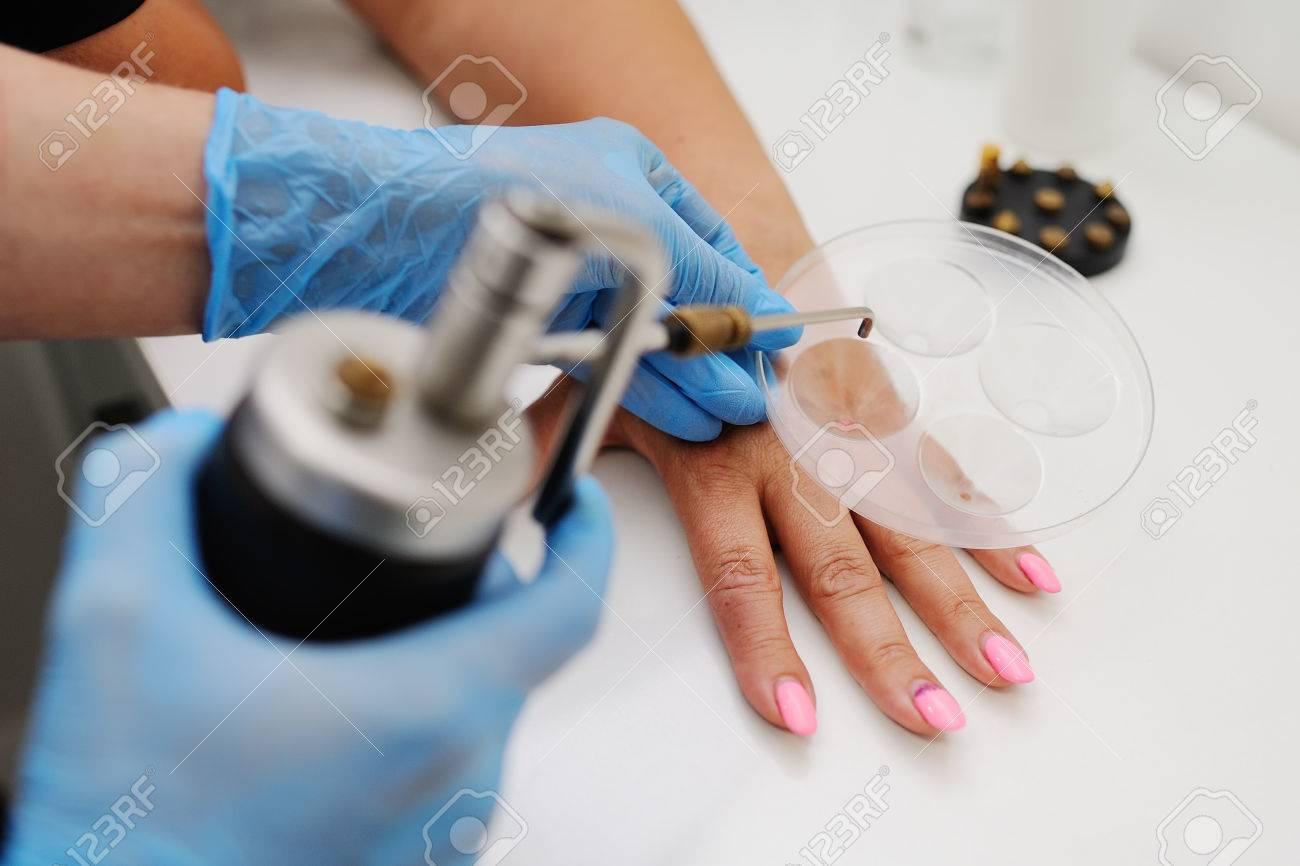 papilloma removal clinic