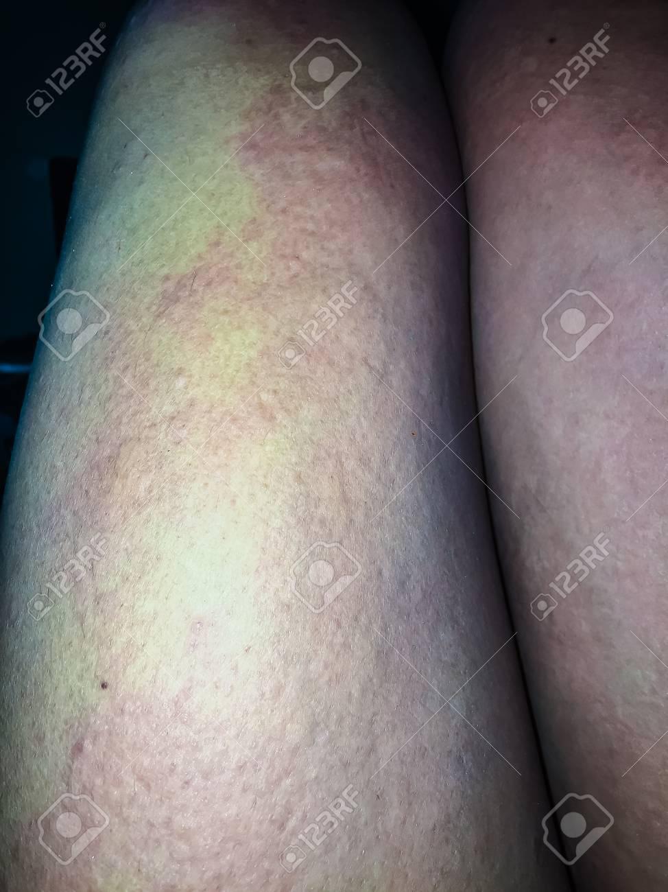 寒冷蕁麻疹 写真