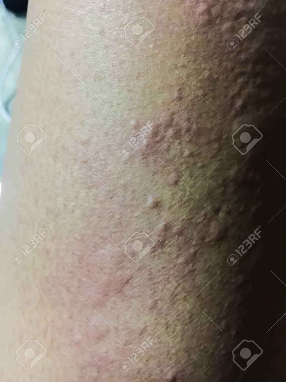 寒暖差アレルギー 蕁麻疹
