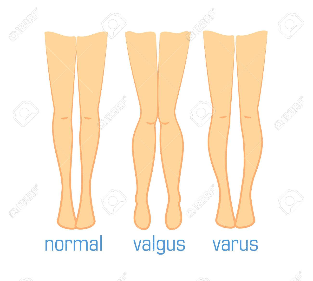 Vector Ilustración Médica Tipos De Curvaturas Pies Humanos. La ...