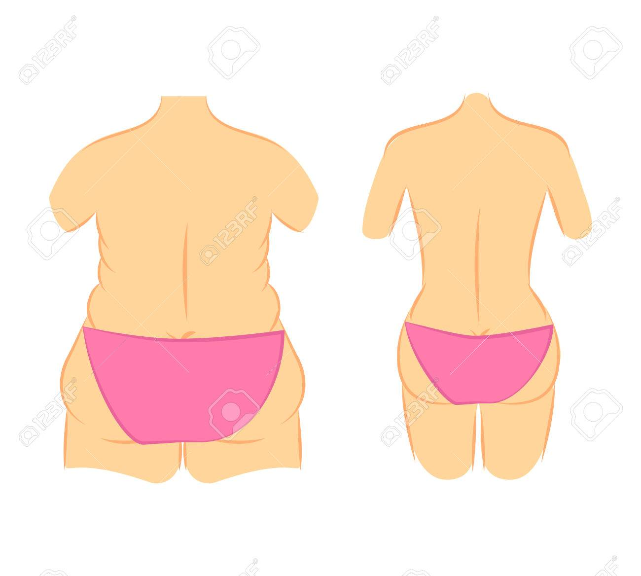 61280eb182 Medical Vector Illustration Two Types Female Figures In Panties ...