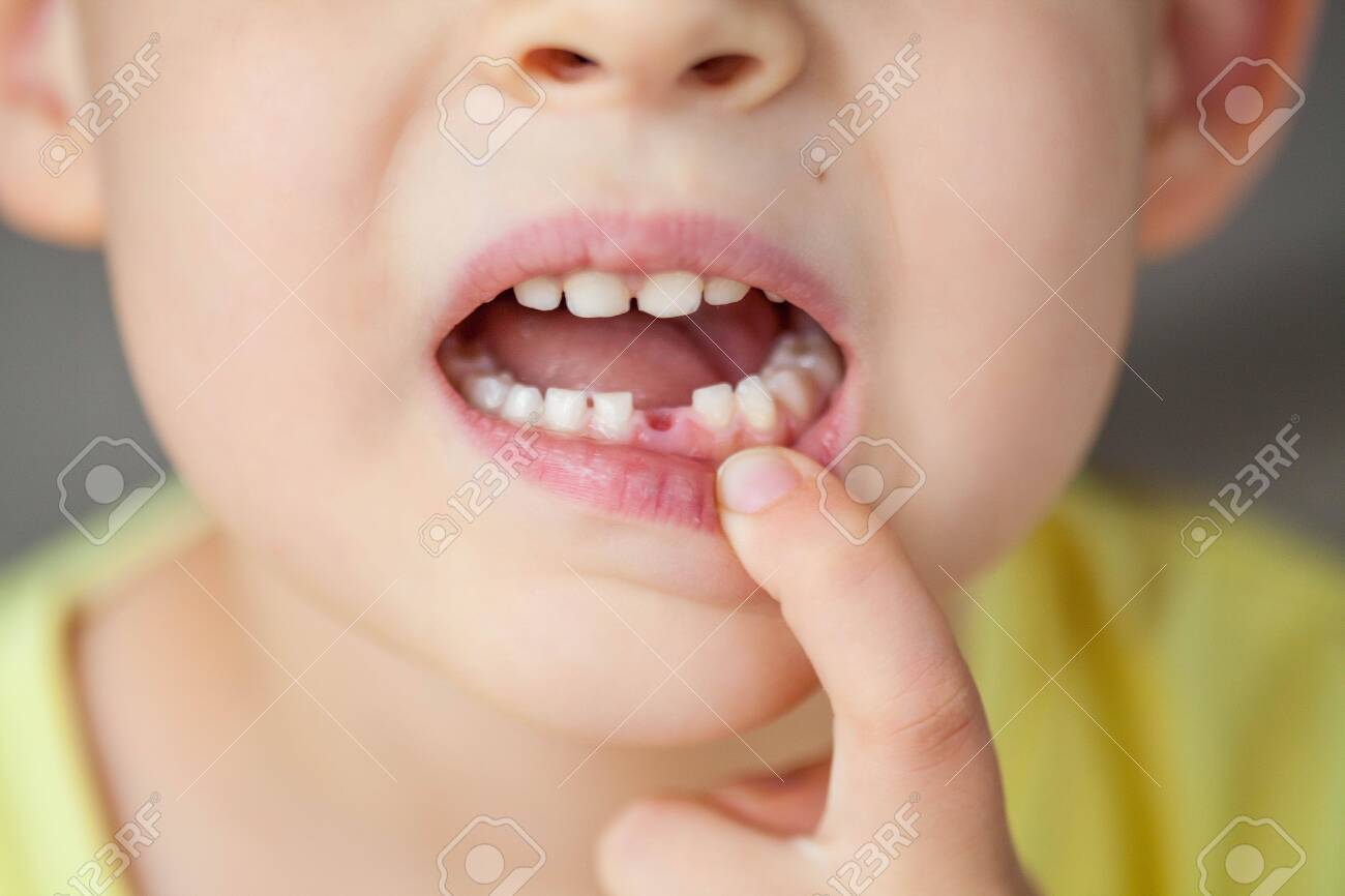 The child dropped the first milk tooth. Happy little boy and milk tooth. Boy. - 146818761