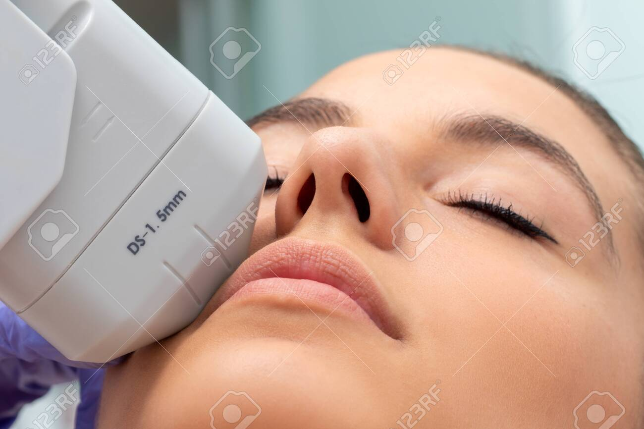 Extreme close up of HIFU treatment on female face. Therapist doing cosmetic plasma lift with high intensity focal ultrasound device. - 131430976