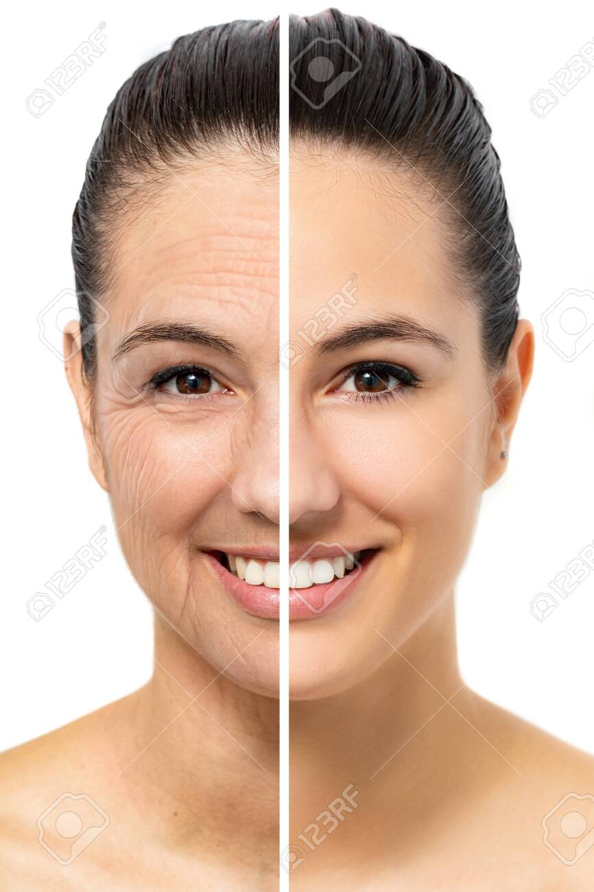 Close up face shot comparison of young woman showing skin aging. Half of face with young and healthy skin next to other half with wrinkled old skin. Isolated on white background. - 131431002