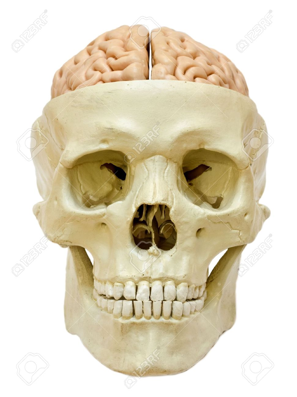 Model Of A Skull With Visible Brain Isolated On White Background Stock Photo